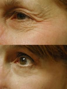 Madonna eyelift