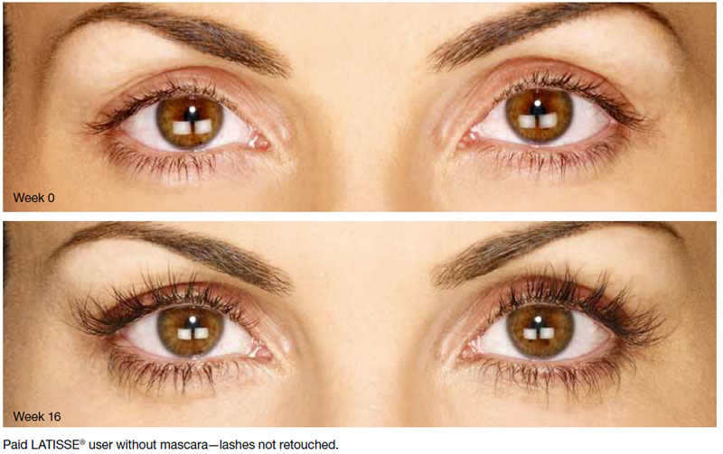 Lovely Lashes With Latisse Comprehensive Dermatology Center Of