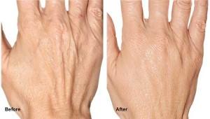 ba-radiesse-hand-rejuvenation