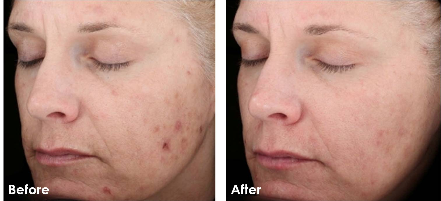 Chemical Peels An A Peel Ing Lift Comprehensive