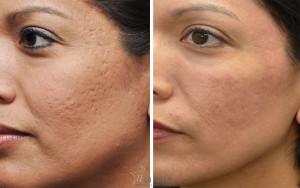 acne-scar-removal-L1