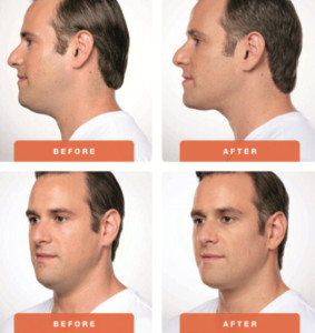 Kybella-Treatment-Male-Patient-Before-and-Afters